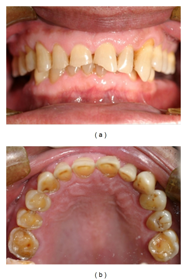 Image showing tooth erosion caused by GERD - Via Wikimedia Commons