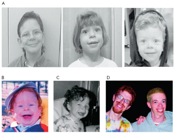 Image of Williams Syndrome patients - Via Wikimedia Commons